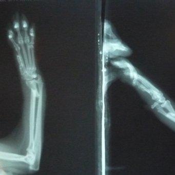 Фото с рентгена в домашних условиях